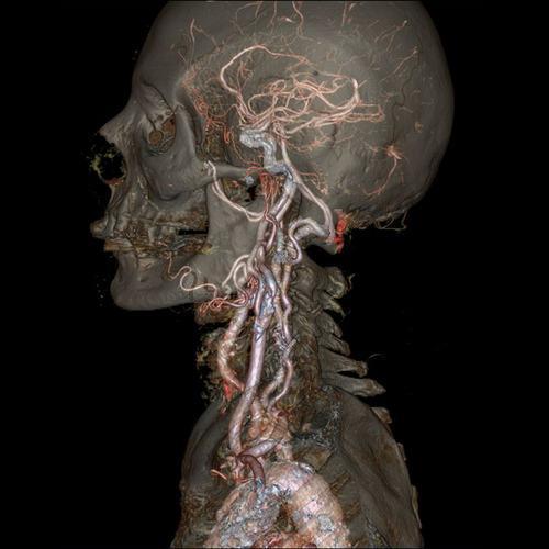 Череп и сонные артерии